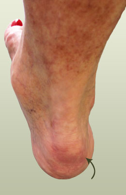 what is a calcaneal spur eugenaplungy�s diary
