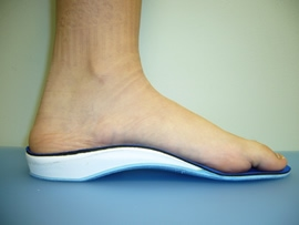 Advancement in Great Toe Arthritis, Hallux Limitus and Hallux Rigidus