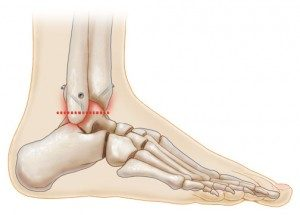 Ankle Fusion, University Foot and Ankle Institute, Los Angeles