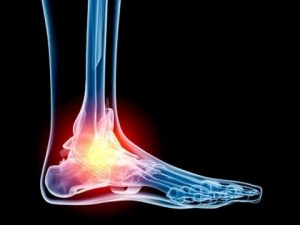 Ankle Replacement Surgery Options, University Foot and Ankle Institute, Los Angeles