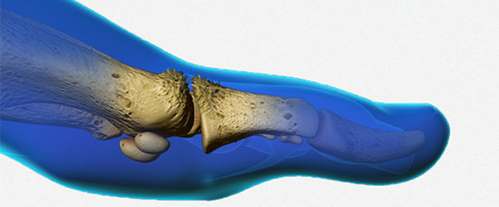 Big Toe Arthritis - Advancements in Treatments