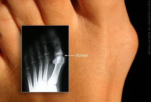 Bunion Surgery Options and Advancements