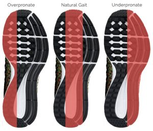 Shoe Wear Patterns, Flat Feet, Over Pronation, University Foot and Ankle Institute