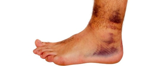 Ankle Sprain, When to See the Ankle Doctor