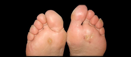All About Plantar Warts