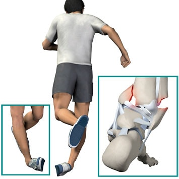 Ankle Sprain and Treatments
