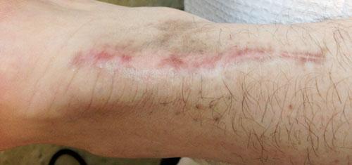 Initial Scar