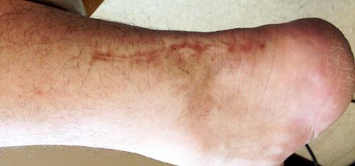3 weeks after laser treatment #1