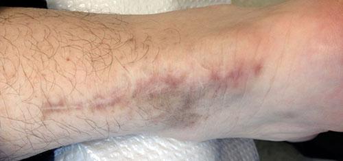 3 weeks after laser treatment #2