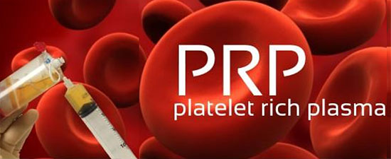 Platelet Rich Plasma for the Treatment of Chronic Achilles Tendon Pain