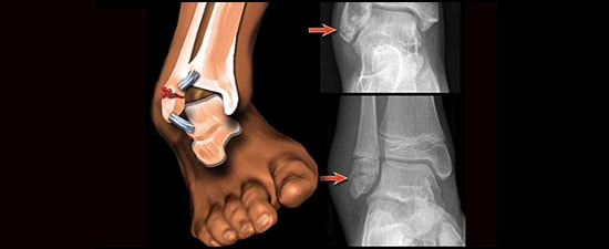 High Ankle Sprain Treatment Options