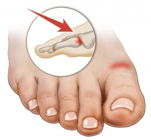 Hallux Limitus Symptoms