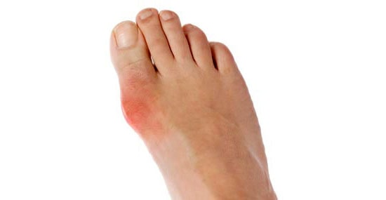 Gout Explained: Symptoms & Treatment Options