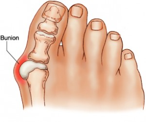 Julis Jones Bunion Surgery