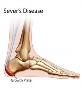 Gowth plate injuries in heel, Baseball injuries