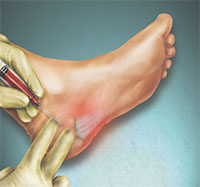 PRP for plantar fasciitis, plantar fasciitis treatment
