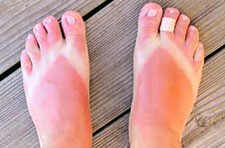 Sunburn on feet, summer and foot injuries