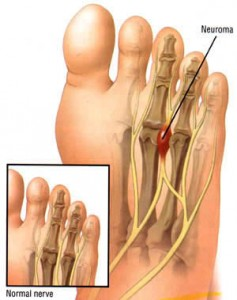 Mortons Neuroma, Walking Pain