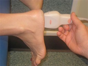 Ultrasound for diagnosing plantar fasciitis