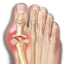 gout-anatomy