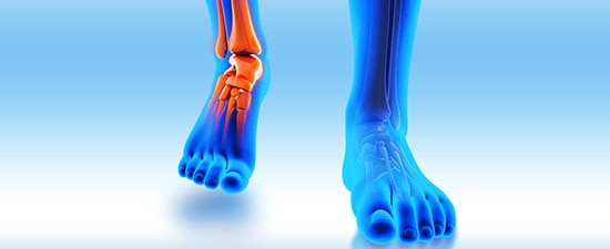 What to Expect When You Fracture Your Ankle