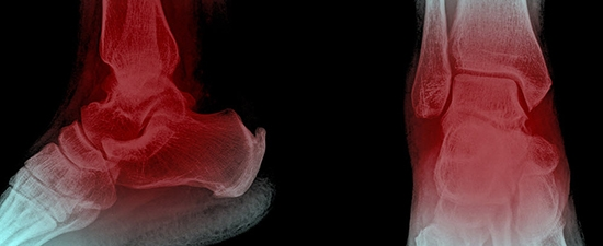 Heel and Ankle Pain, UFAI's May Free Seminar!