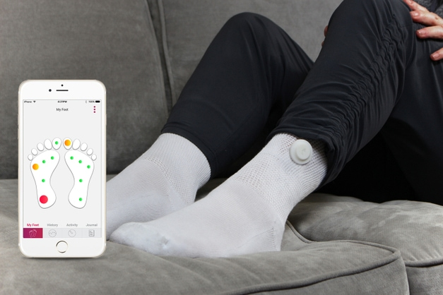 Diabetic Feet, Smart Sock