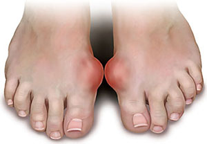reducing uric acid in your blood diet to treat high uric acid medication for gout colchicine