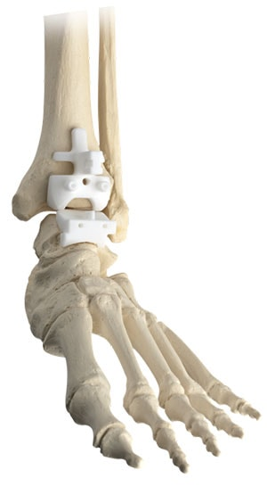 Wright Prophecy Ankle Replacement