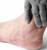 ankle arthritis Los Angeles